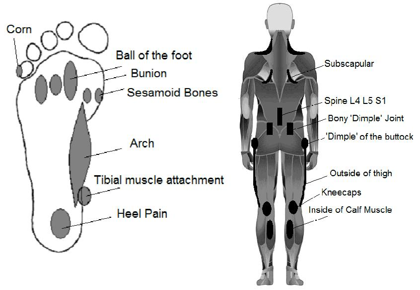 Walk Without Pain Helps You Assess If You Need Orthotics