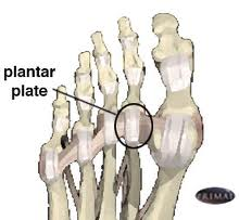 Why does a plantar plate tear occur walk without pain plantar plate tear publicscrutiny Image collections