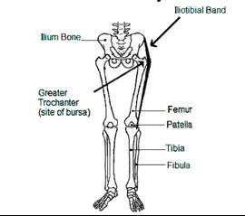 Trochanteric Bursitis