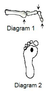 Infirmidad de los pies