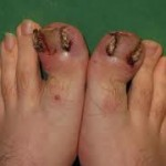 bad ingrown toenails